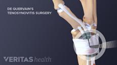 De Quervain's Tenosynovitis Surgery