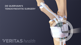Incision from De Quervain's Tenosynovitis Surgery
