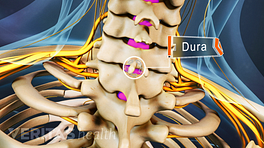 Posterior view of the cervical spine highlighting the dura in the epidural space.