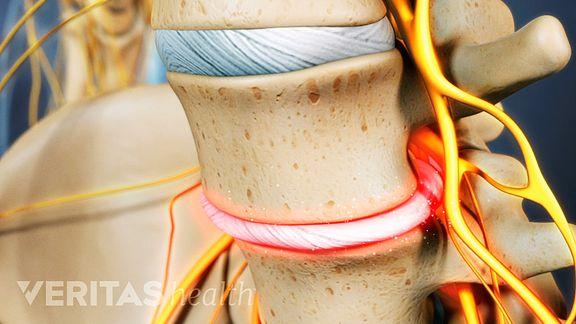 Degenerative Disc Nerve Root