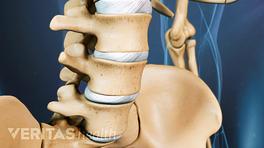 Anterior view of degenerative spondylolisthesis in the lumbar spine.