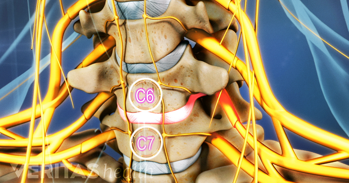 All About The C6 C7 Spinal Segment In The Neck