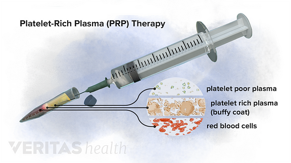 Composition of platelet rich plasma (PRP)