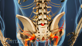 Posterior view of isthmic spondylolisthesis in the lumbar spine.