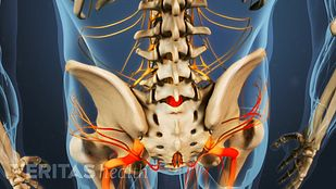 Isthmic Spondylolisthesis Video