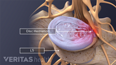 Lumbar Herniated Disc Symptoms