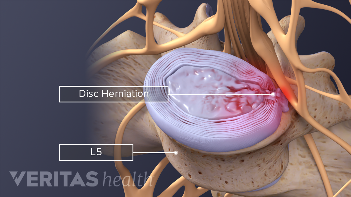 Medical illustration of a herniated disc and extruded material and the L4-L5 segment of the lumbar spine