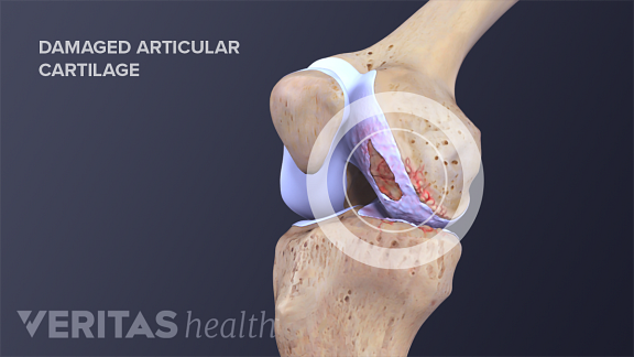 Knee joint labeling femur, patella, articular cartilage, and tibia.