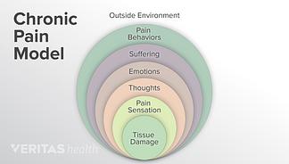 chronic pain model