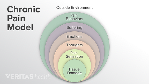 Chronic pain model