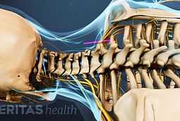 Cervical Spine Surgery