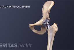 More than 327,000 people have total hip replacement surgery in the United States each year.