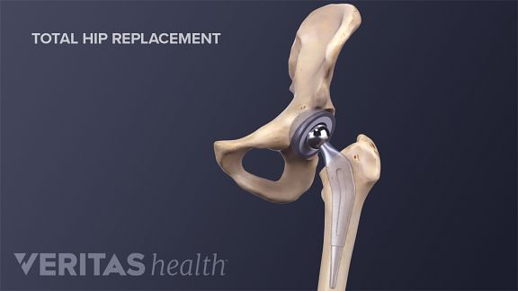 Medical illustration of hip joint replacement