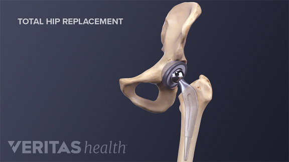 Illustration of total hip replacement for hip osteoarthritis