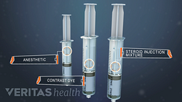Three syringes showing three injection components, contrast dye, anesthetic, and steroid injection mixture
