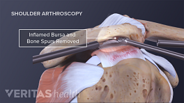 Arthroscopic repair of a shoulder impingement