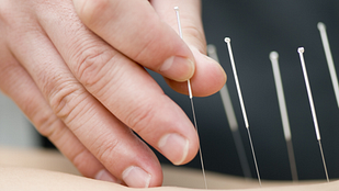 Hand placing an acupuncture needles into the skin of the back.