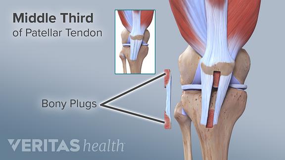 Illustration of patellar tendon graft bony plugs for ACL repair