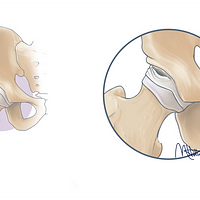 Medical illustration of an intra articular hip labral tear