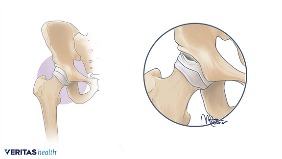 Medical illustration of an intra articular hip labral tear