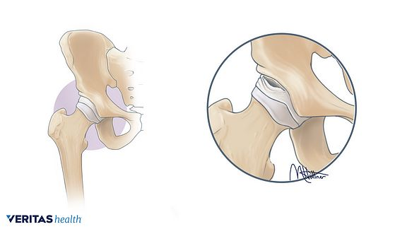 illustration of an intra articular labral tear