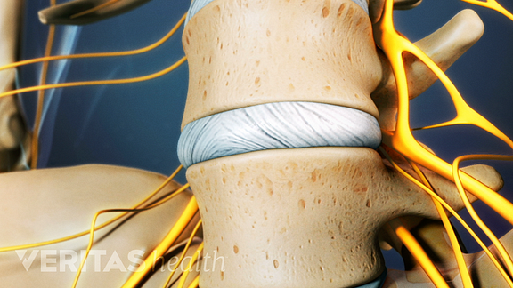 Medical illustration of two vertebrae in the lower back and the disc between them.