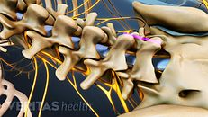 腰椎融合术