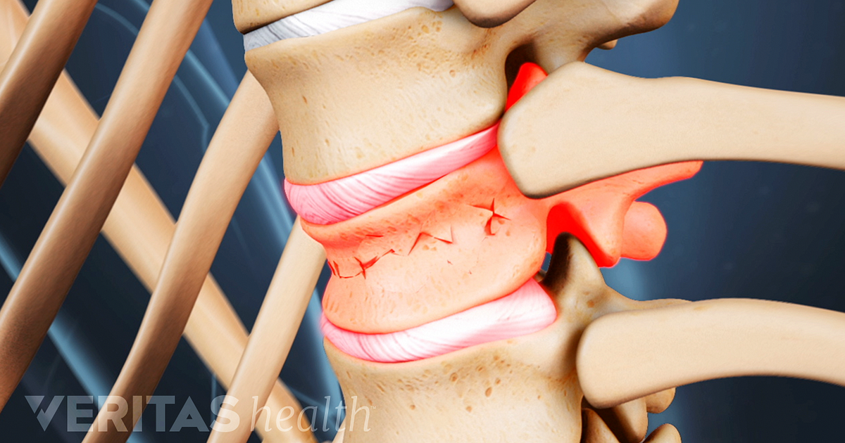Signs And Complications Of Osteoporosis