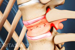 Percutaneous vertebroplasty is a minimally invasive procedure from treating spinal compression fractures.