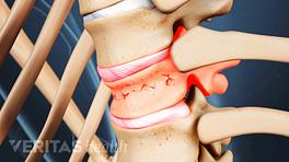 Anterior view of compression fracture in a vertebra.
