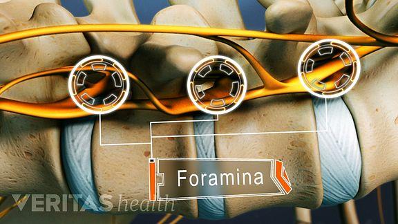 Intervertebral Foramina