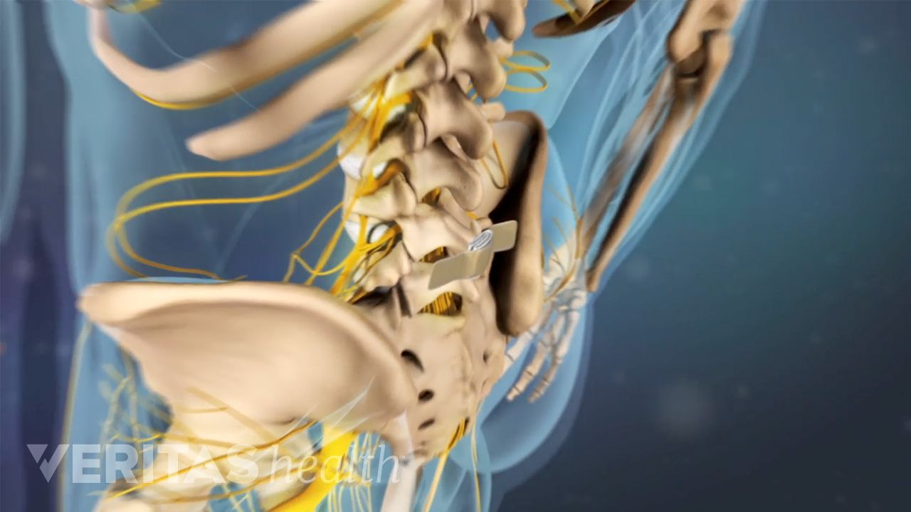 Epidural Steroid Injections for Back Pain and Leg Pain Video
