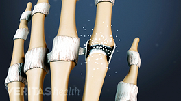 Close up illustrated view of arthritis in the finger joints
