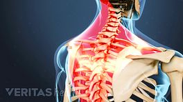 Posterior view of upper body with pain highlighted in the shoulders