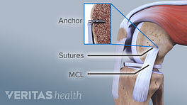 MCL Surgery showing the anchor, sutures, and MCL
