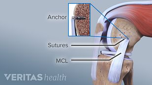 MCL Surgery