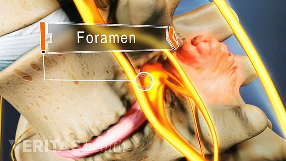 Medical illustration showing bone spurs crowding the space in the foramen, the space where nerves exit the spinal canal