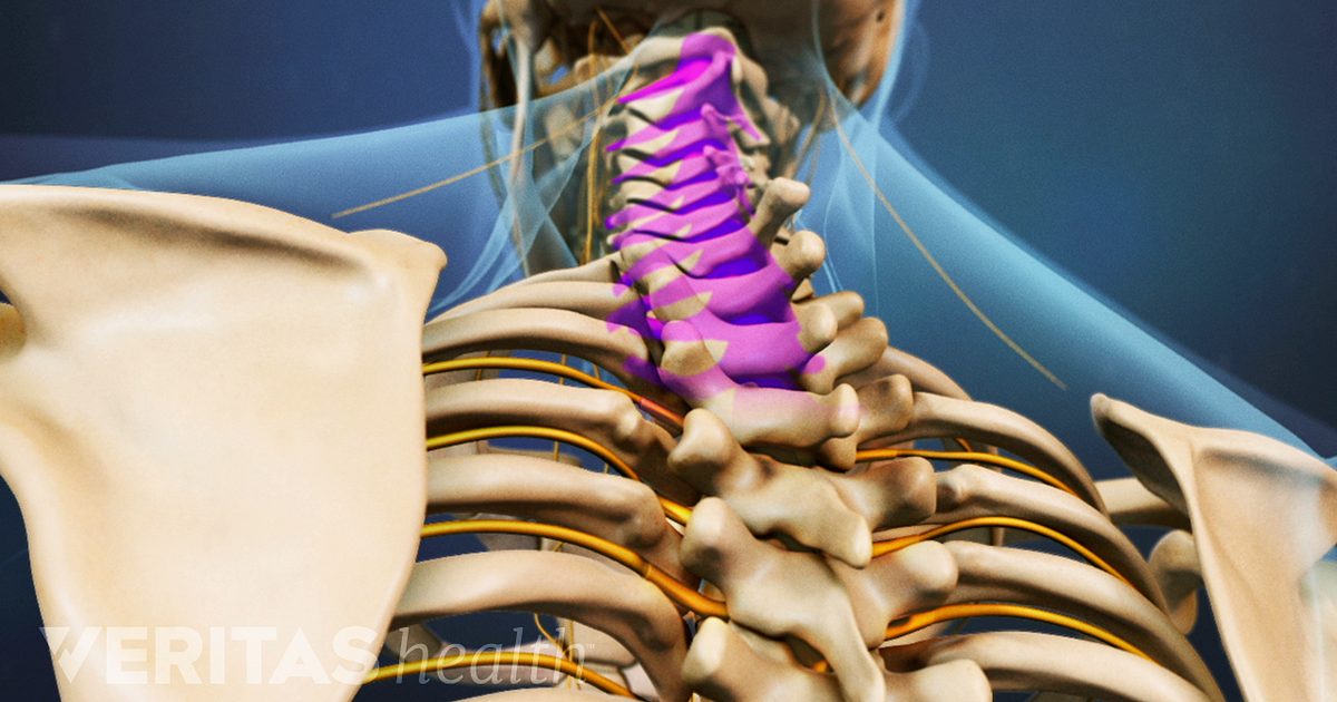Cervical Spondylosis and Cervical Myelopathy Symptoms