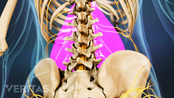 Medical illustration of the lower spine. The muscles are highlighted, to indicate muscle strain