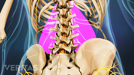 Posterior view of the lower back highlighting the pain in the lumbar spine.