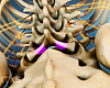 Posterior view of the lumbar spine highlighting the lamina for access to the spinal canal.