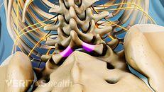 Lumbar Laminectomy Surgery Video