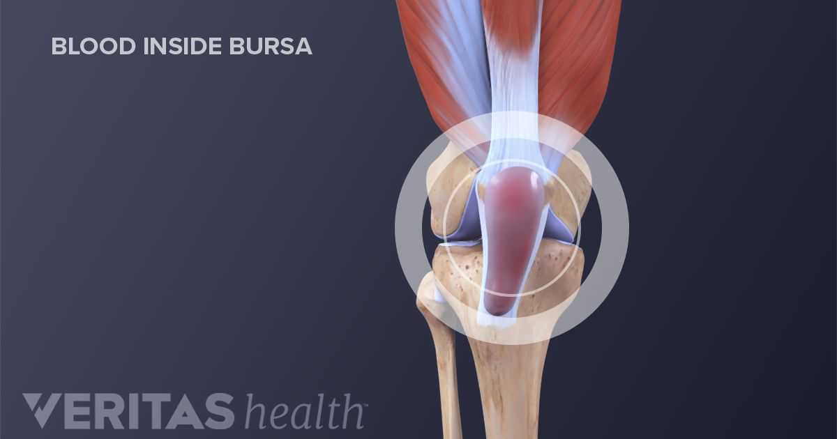How Infection Can Lead to Severe Knee Pain