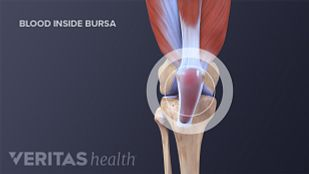 Medical illustration of knee bursa
