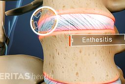 Enthesopathy and Enthesitis