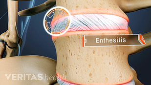 Animated still image of the location of an inflamed enthesis