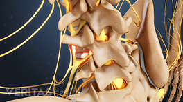 Posterior profile view of the lumbar spine.