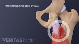 Hamstring muscles coming out from the hip bone