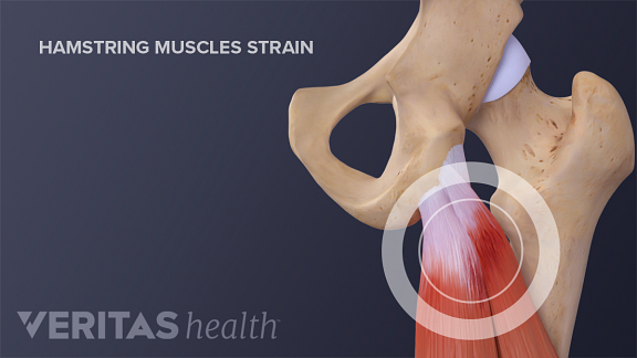 how acute hamstring pull occurs A hamstring strain can be very painful webmd explains how they're caused, diagnosed, treated, and prevented.