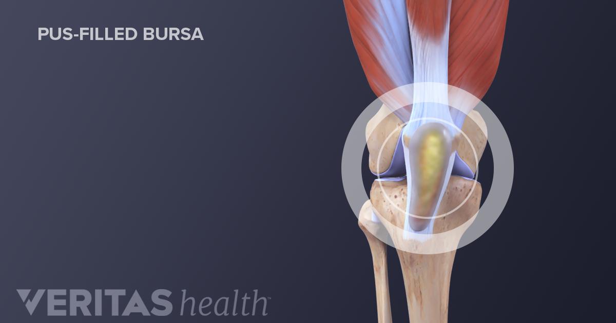 Septic Bursitis: The Serious Side of Bursitis